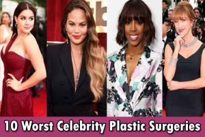 plastic surgery,celebrity,celebrity plastic surgery,worst plastic surgeries,worst,worst celebrity surgery,worst plastic surgery,